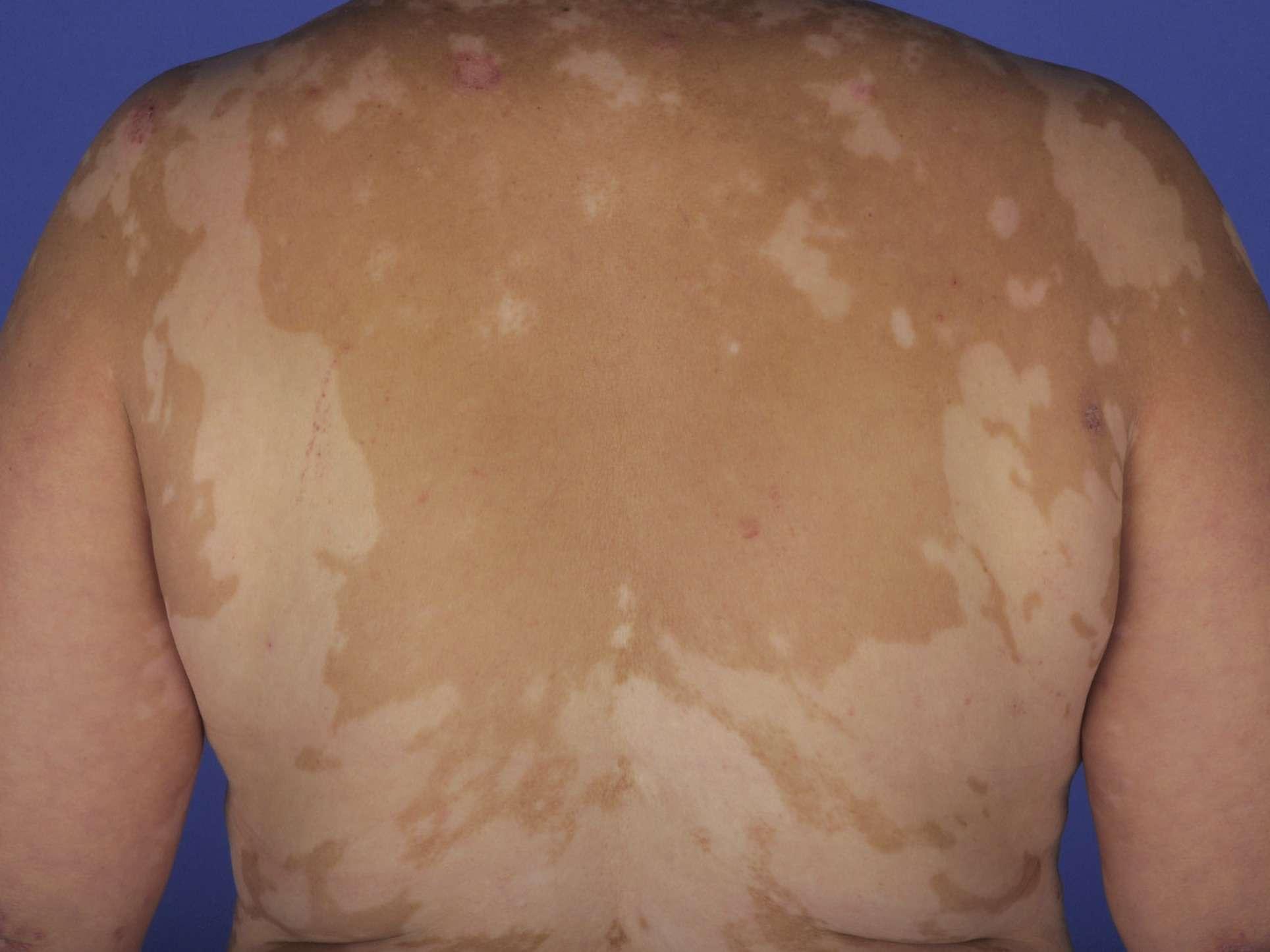 Vitiligo in vogt-koyanagi-harada syndrome
