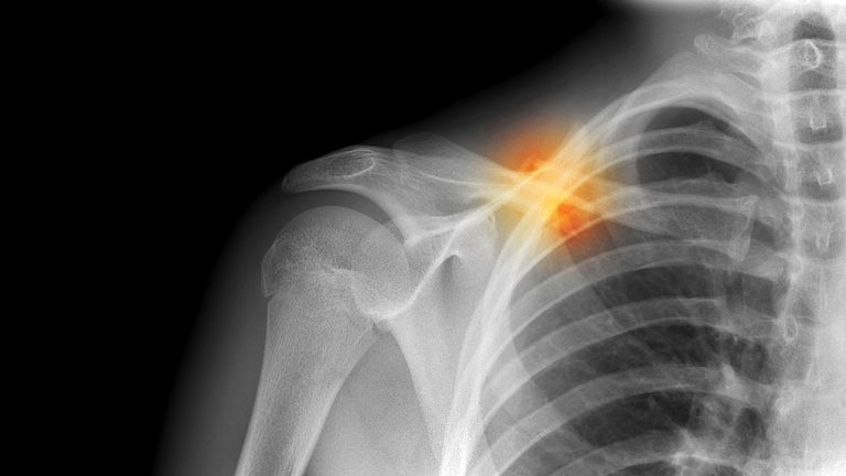 fractured collarbone x ray