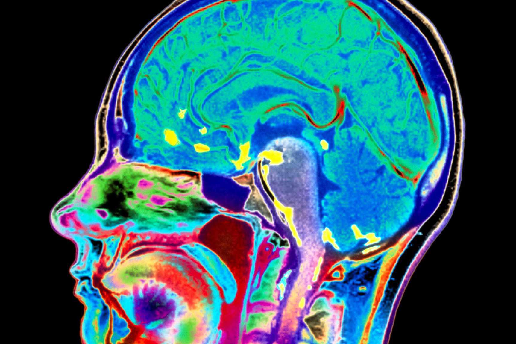 Brain scan of a patient with meningitis