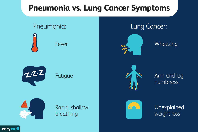 Pneumonia vs. Lung Cancer Symptoms