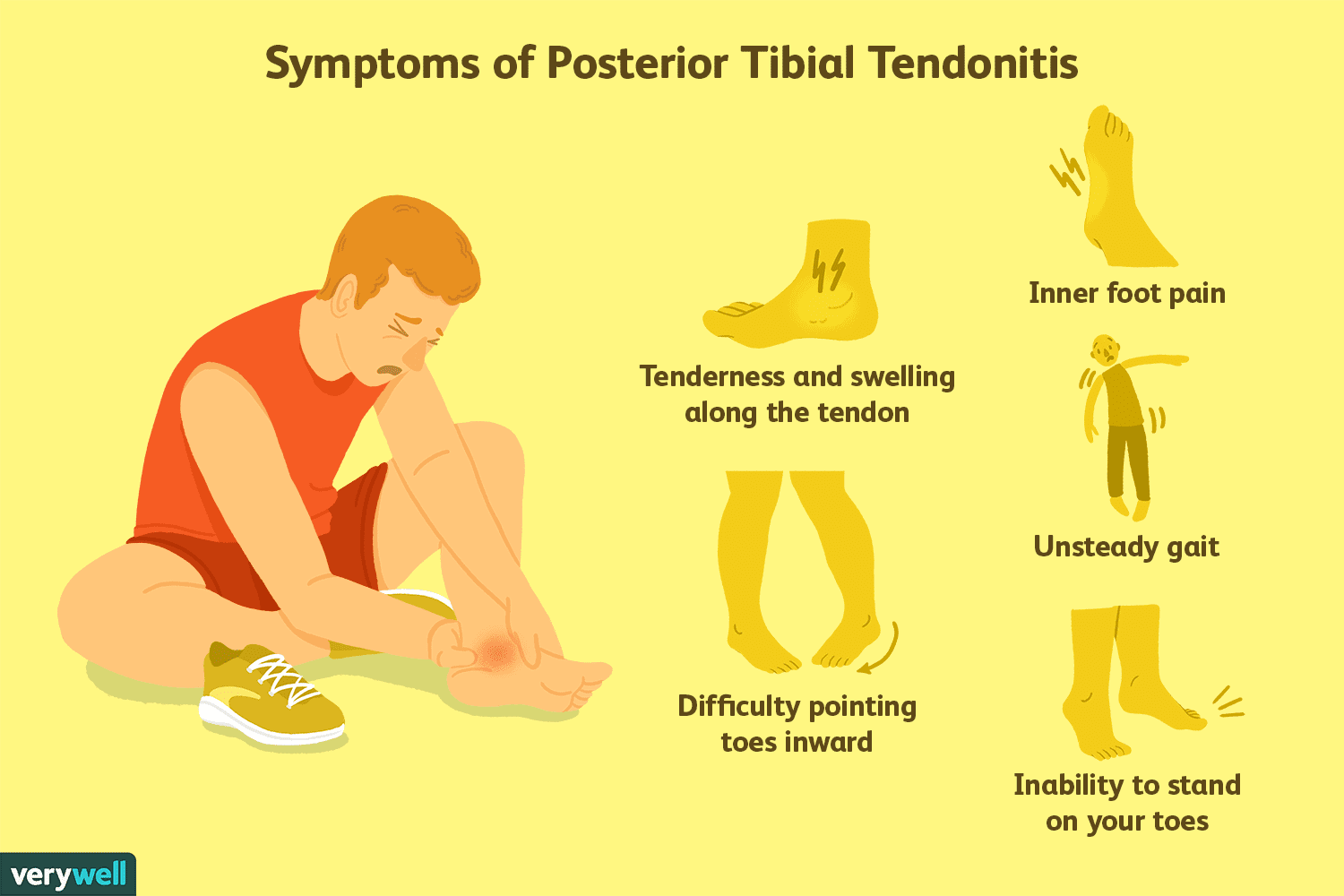 Posterior Tibial Tendonitis Signs And Treatment