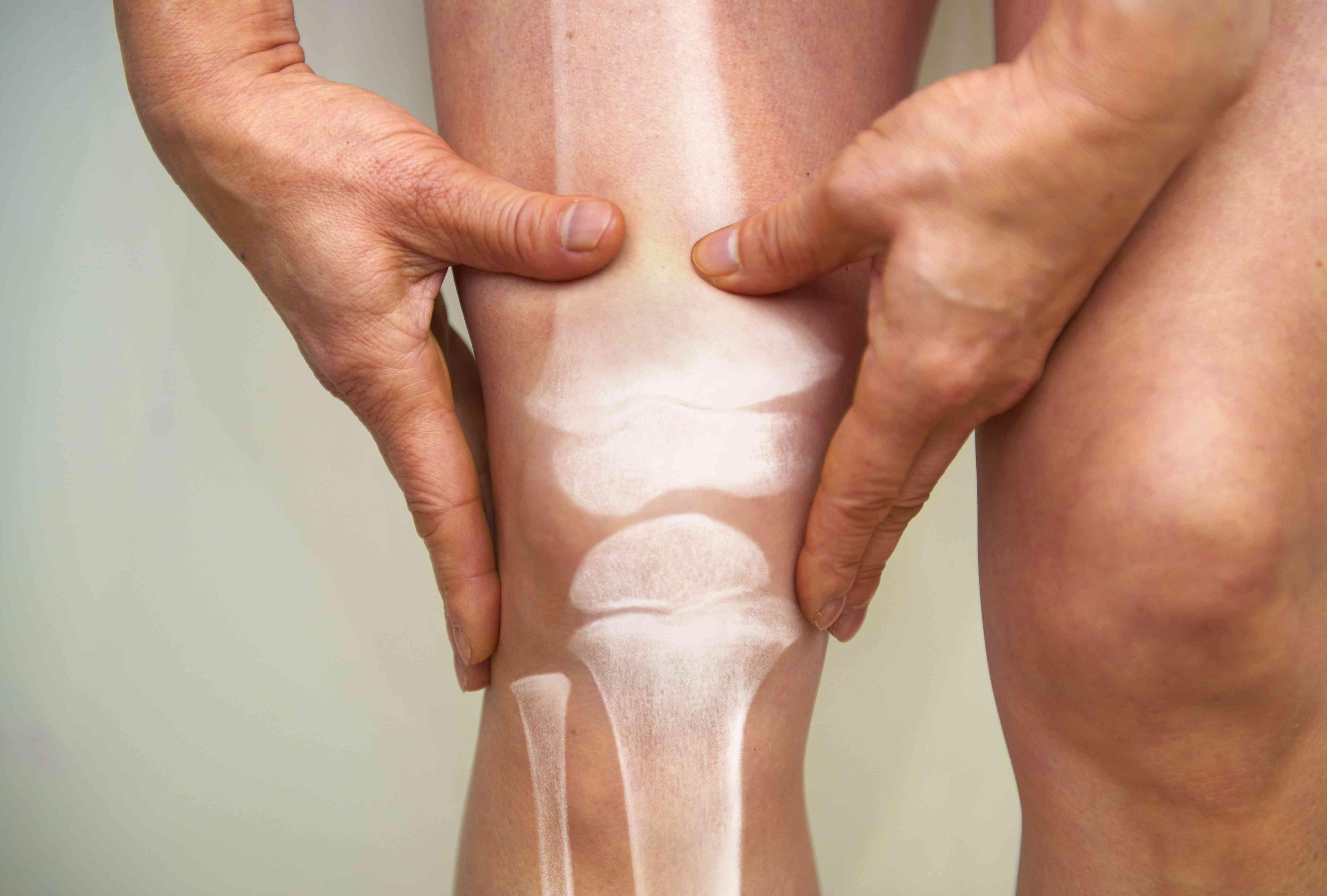 X-ray of knee - osteoarthritis and rheumatoid arthritis