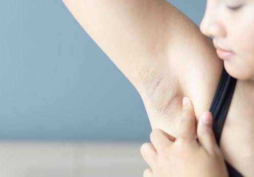 Woman touching her armpit lymph nodes