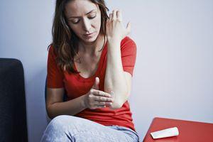 woman applying cream to rash on arm