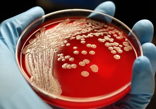 MRSA bacterial colonies in a petri dish.