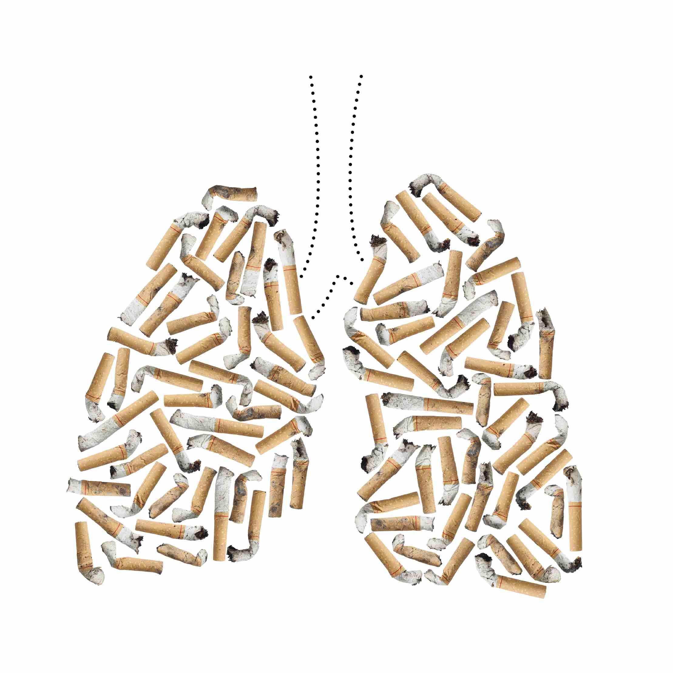 Is It Harder to Have Lung Cancer Than Breast Cancer?