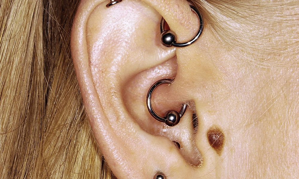Daith Piercing as a Controversial, Alternative Migraine Therapy