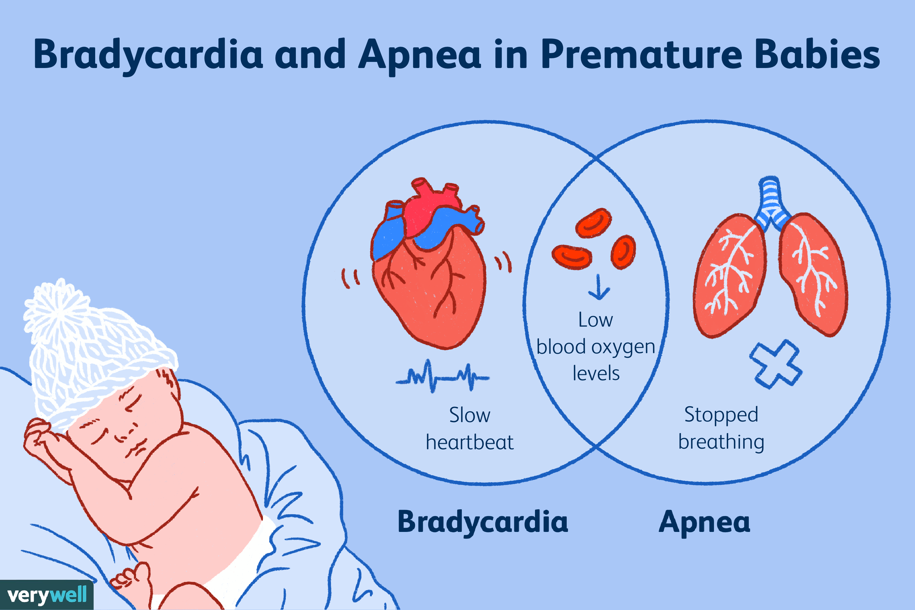 How Do You Spell Oxygen >> Bradycardia And Apnea In Preemies