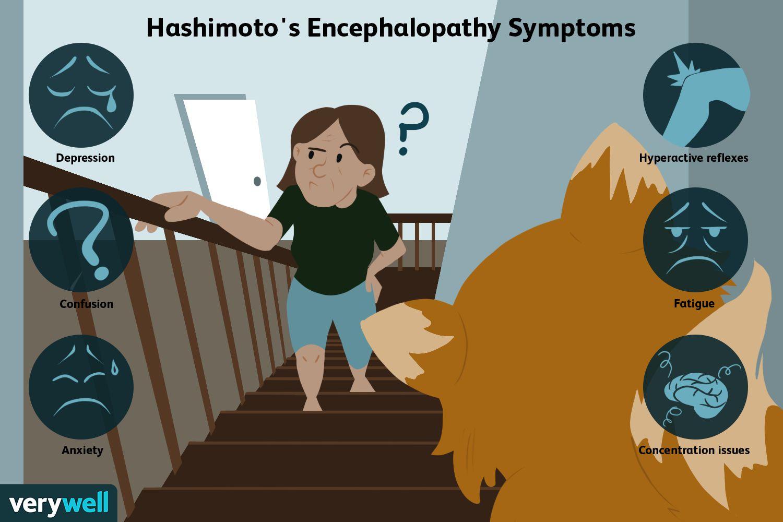Hashimoto's Encephalopathy Symptoms