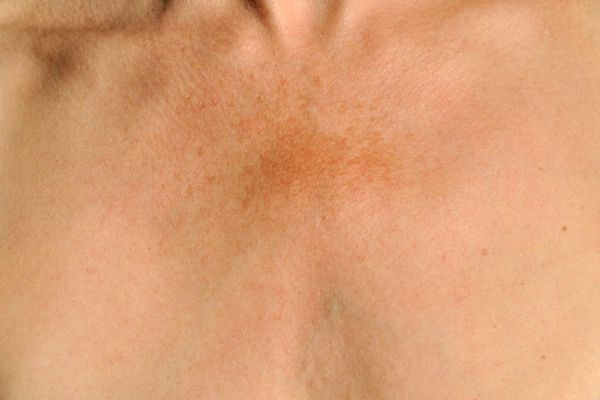 Melasma on a woman's chest - how to treat melasma