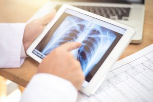 closeup of a young caucasian doctor man sitting at his office desk observing a chest radiograph in a tablet computer