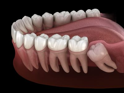 Healthy teeth and wisdom tooth with mesial impaction.