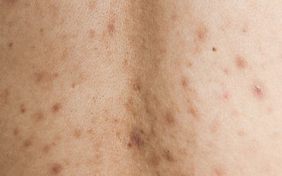 Is Post Inflammatory Hyperpigmentation a Scar