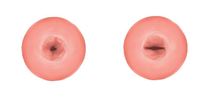 Illustration of a cervix