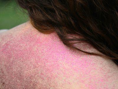 A rash indicating Still's disease.