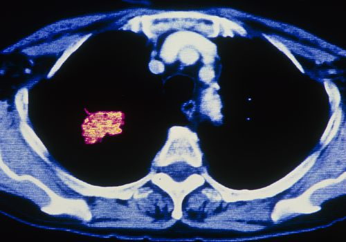 Coloured CT scan showing cancer of a lung