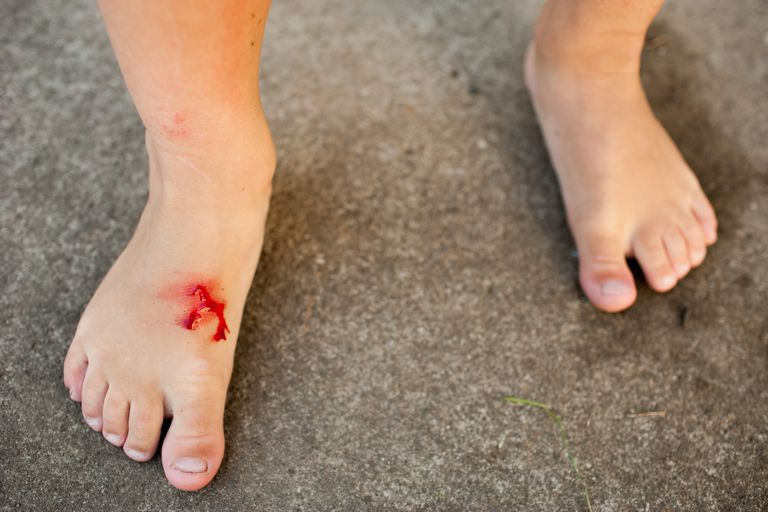 person with bloody foot