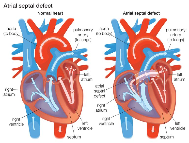 Diagram demonstrating the difference between a normal heart and a heart with an atrial septal defect