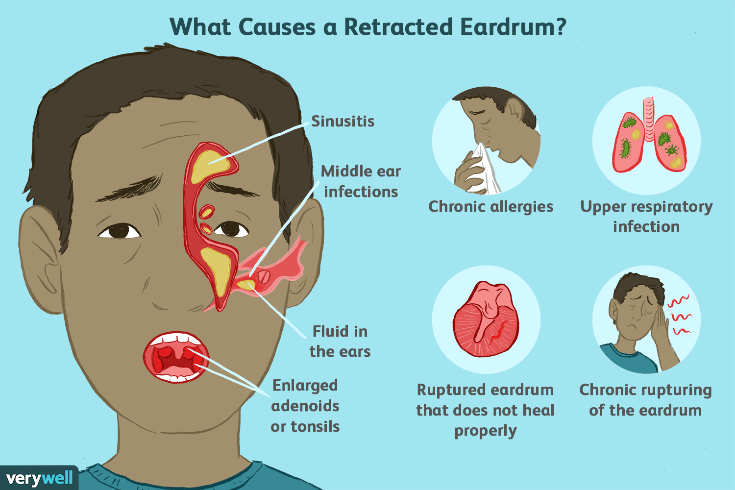 Retracted Ear Drum Causes, Symptoms, and Treatment