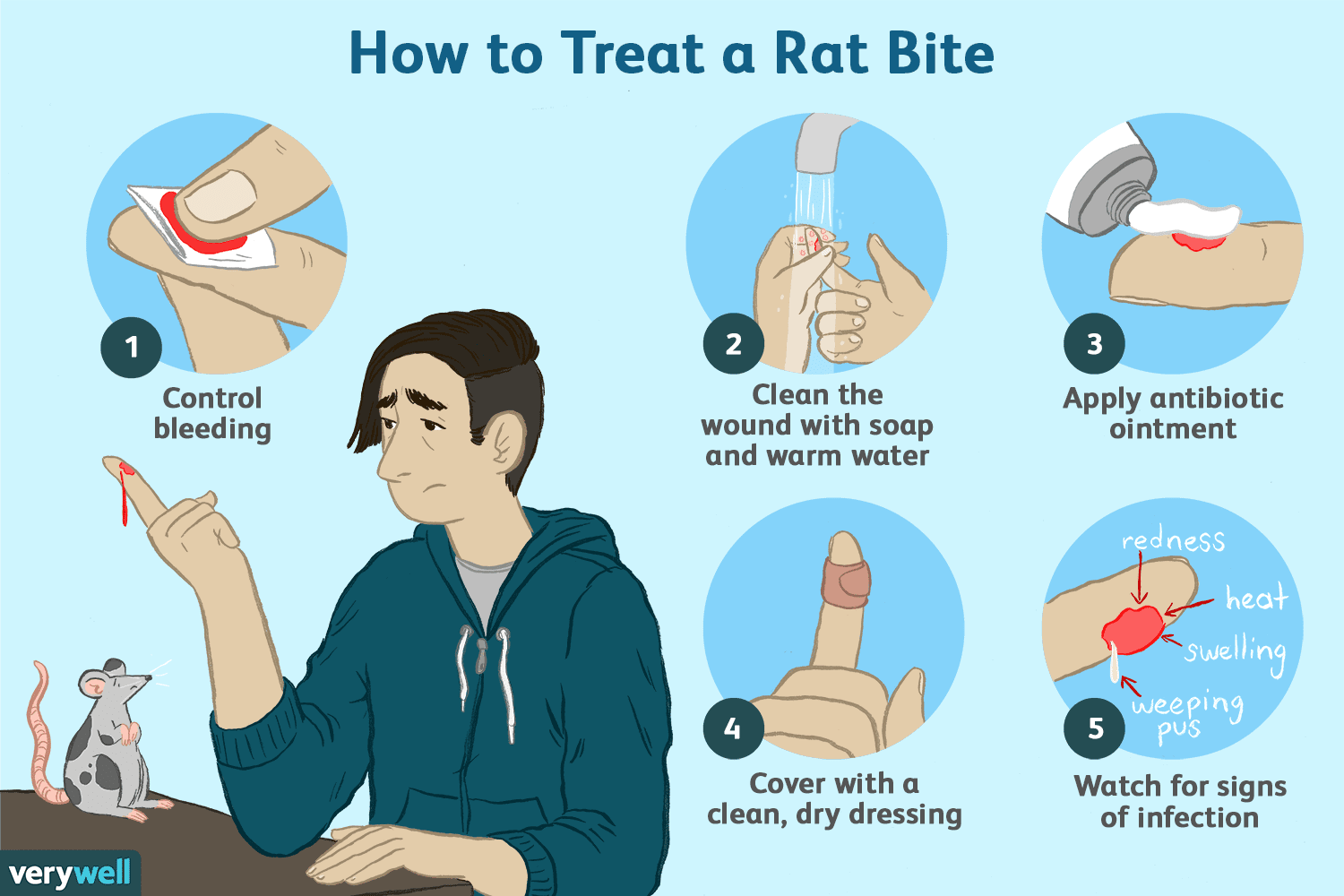 how to treat a rat bite or scratch