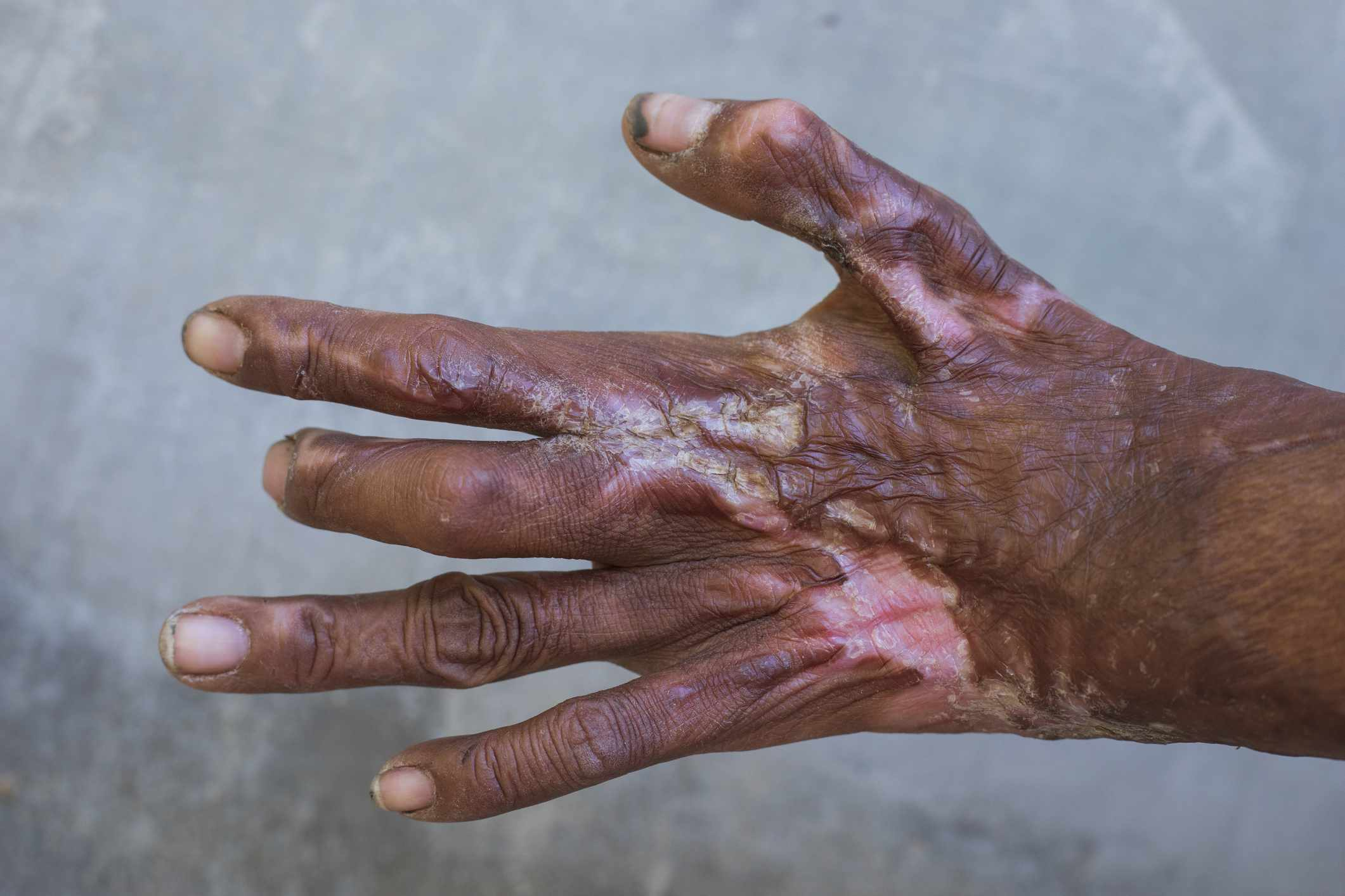 Severely injured hand from scald or accident,Hands that are scar after surgery