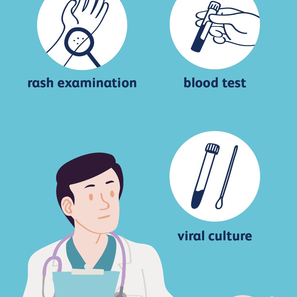 chickenpox diagnosis