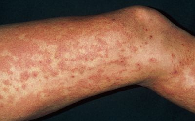 Urticaria (Hives): Signs, Symptoms, and Complications