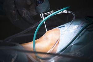 Surgeon performing knee arthroscopy for torn menisucs