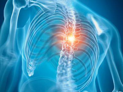 Ankylosing spondylitis surgery