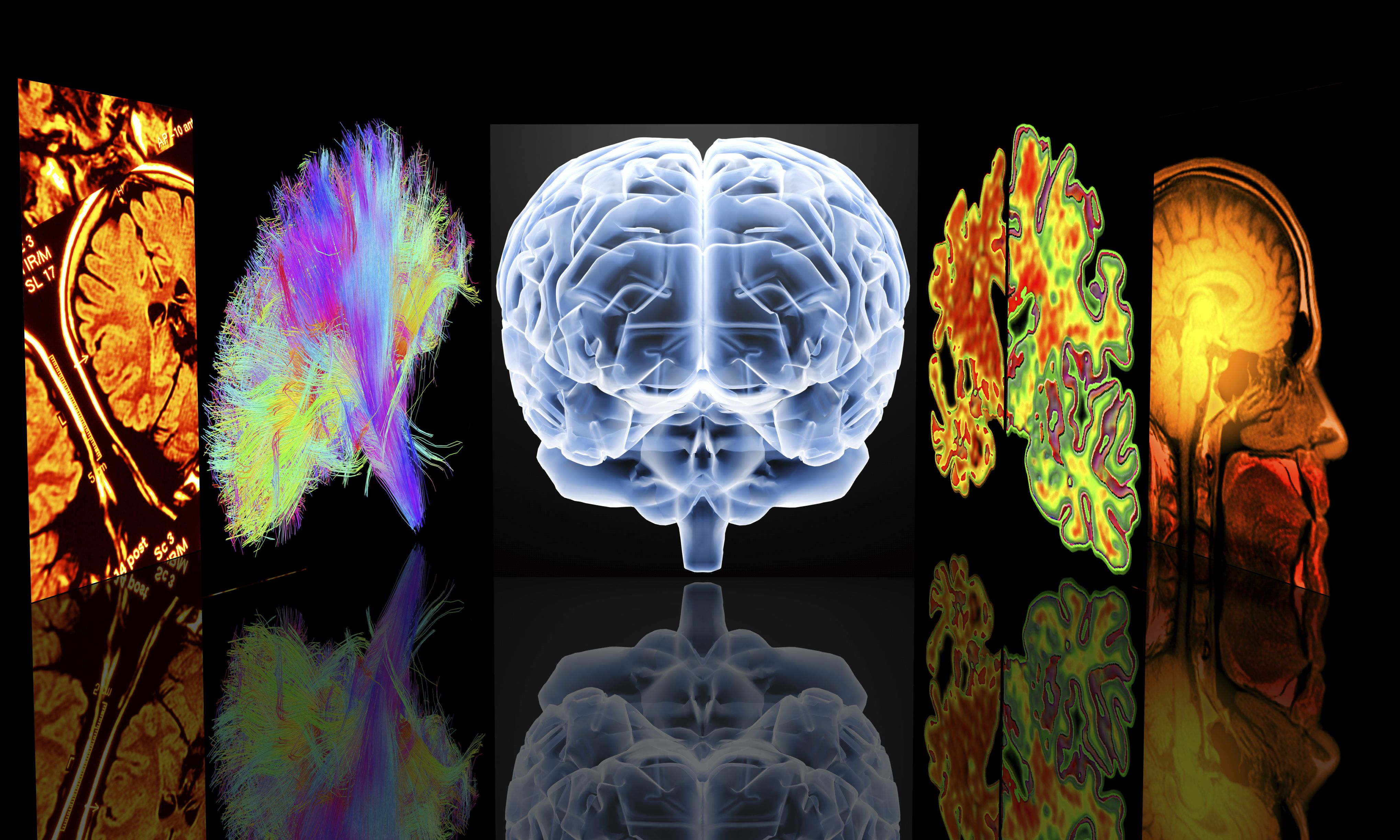 describe the likely signs and symptoms of dementia