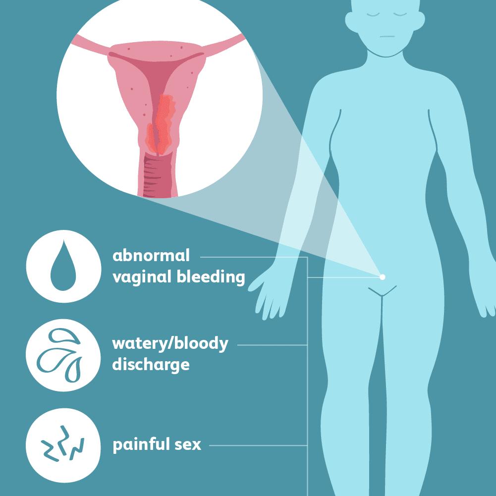 endometrial cancer pregnancy tratamentul papilomavirus la bărbați