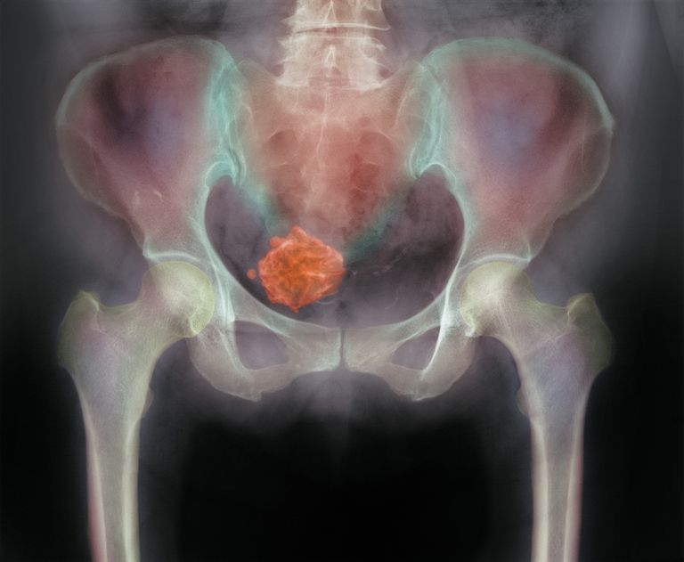 radiograph with illustrated uterine fibroid