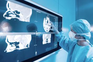 Doctor examining a patient's brain scans.