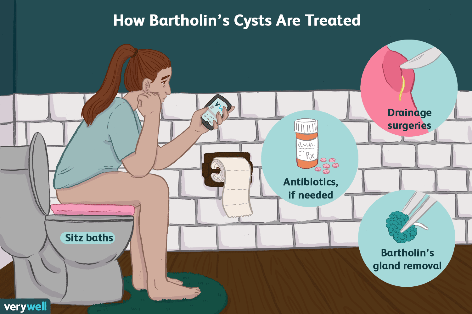 Symptoms, Causes, and Treatment of a Bartholin's Cyst