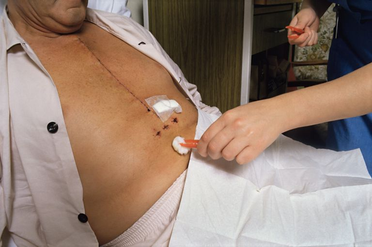 Picture of a chest scar after open heart surgery.