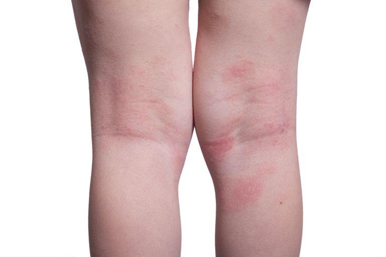 Eczema on the kid's legs