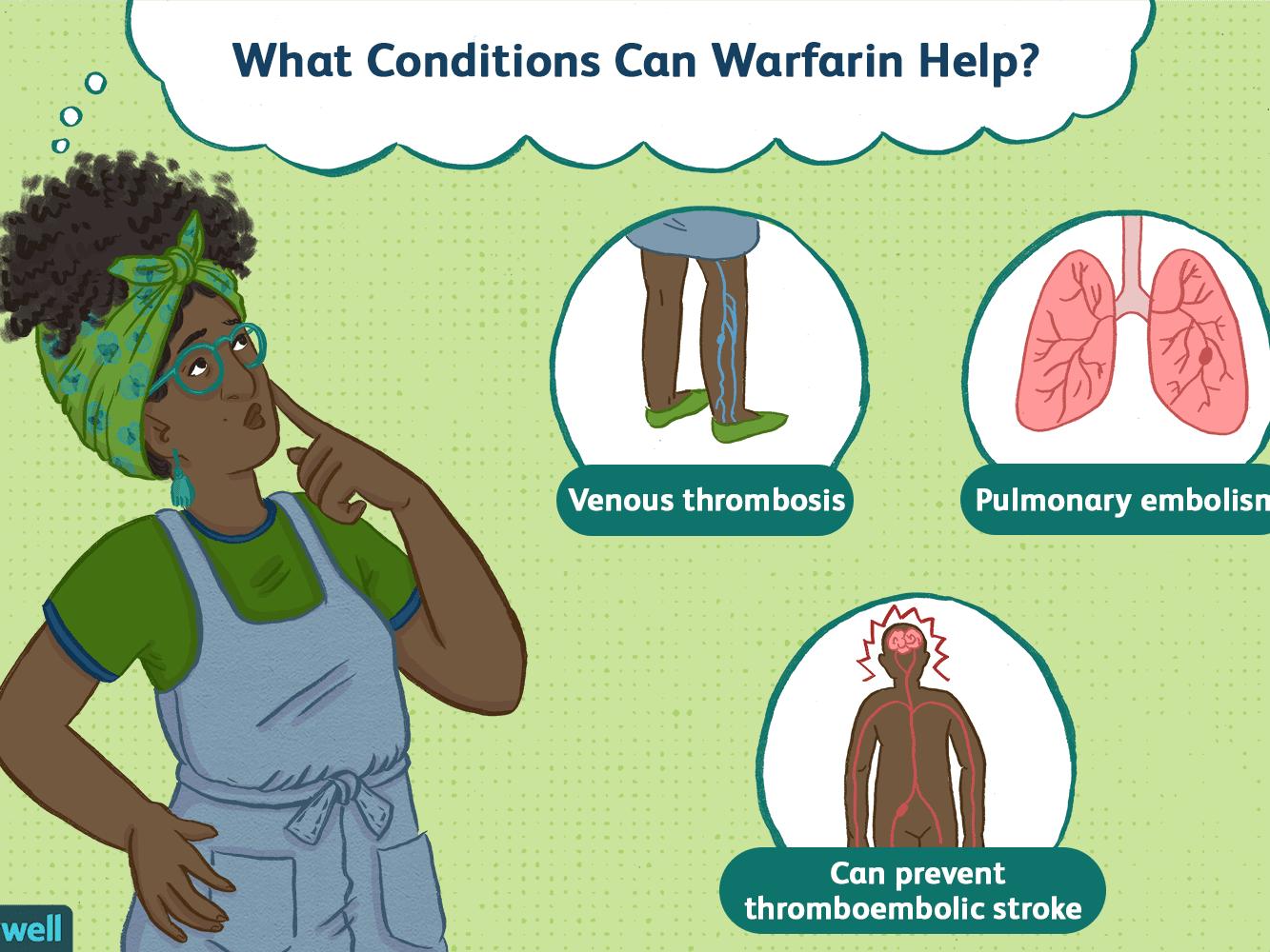 recenzii warfarin în varicoză)