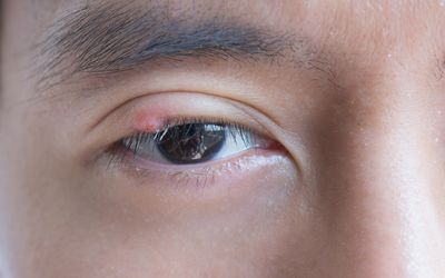 Young man with a brown eye who has a stye.