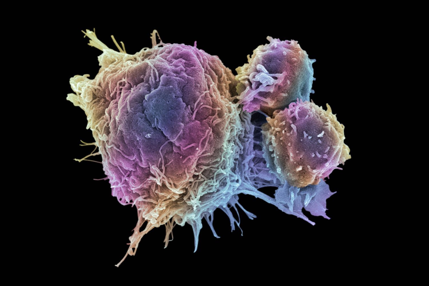 Cancer Cells vs  Normal Cells: How Are They Different?