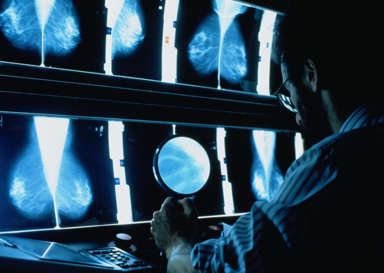 Male radiographer sat at light box studying mammograms