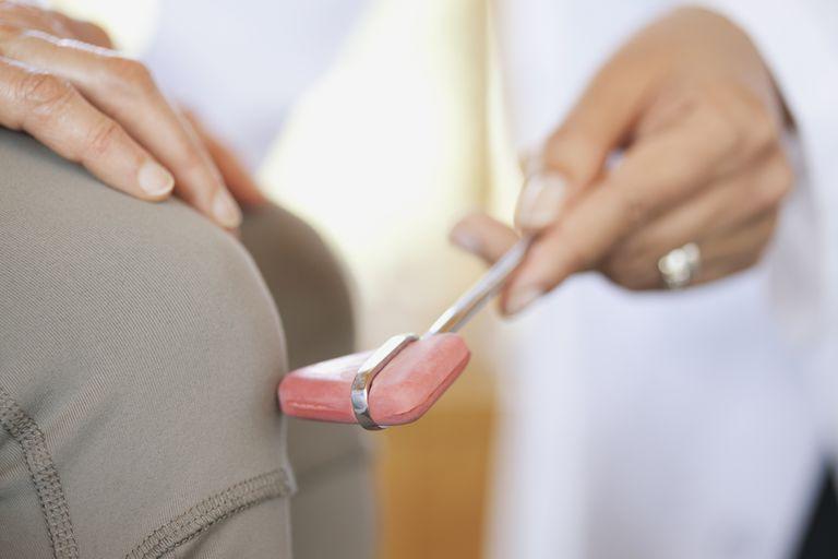 doctor doing reflex test on patient's knee