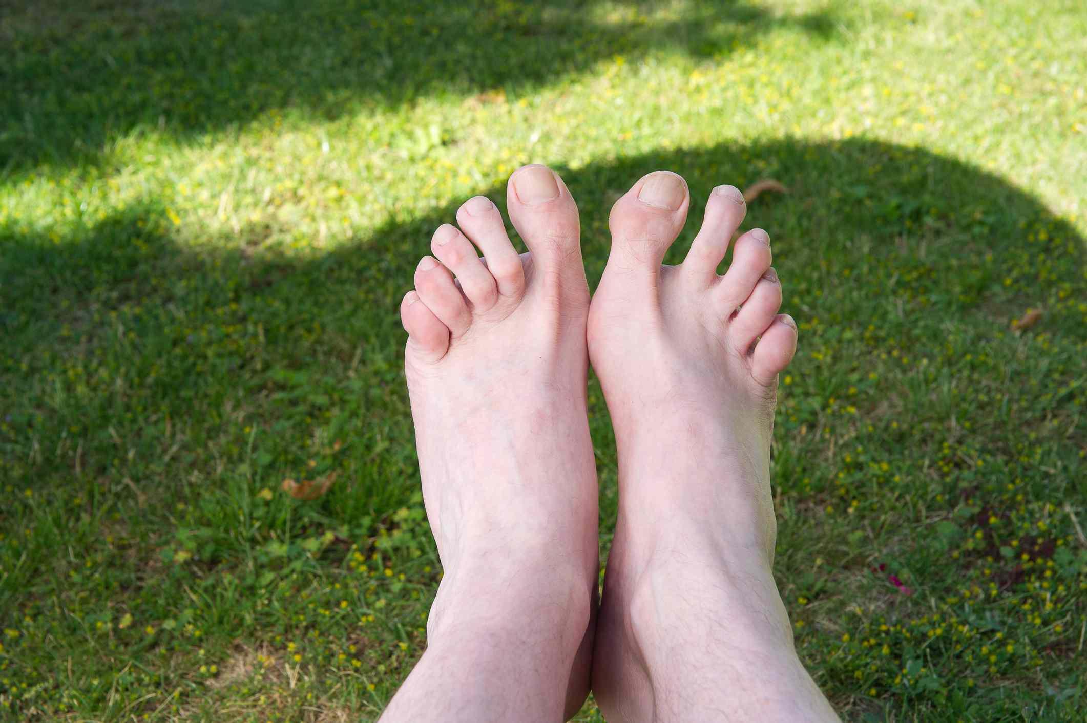 Rheumatoid nodules on toe joints