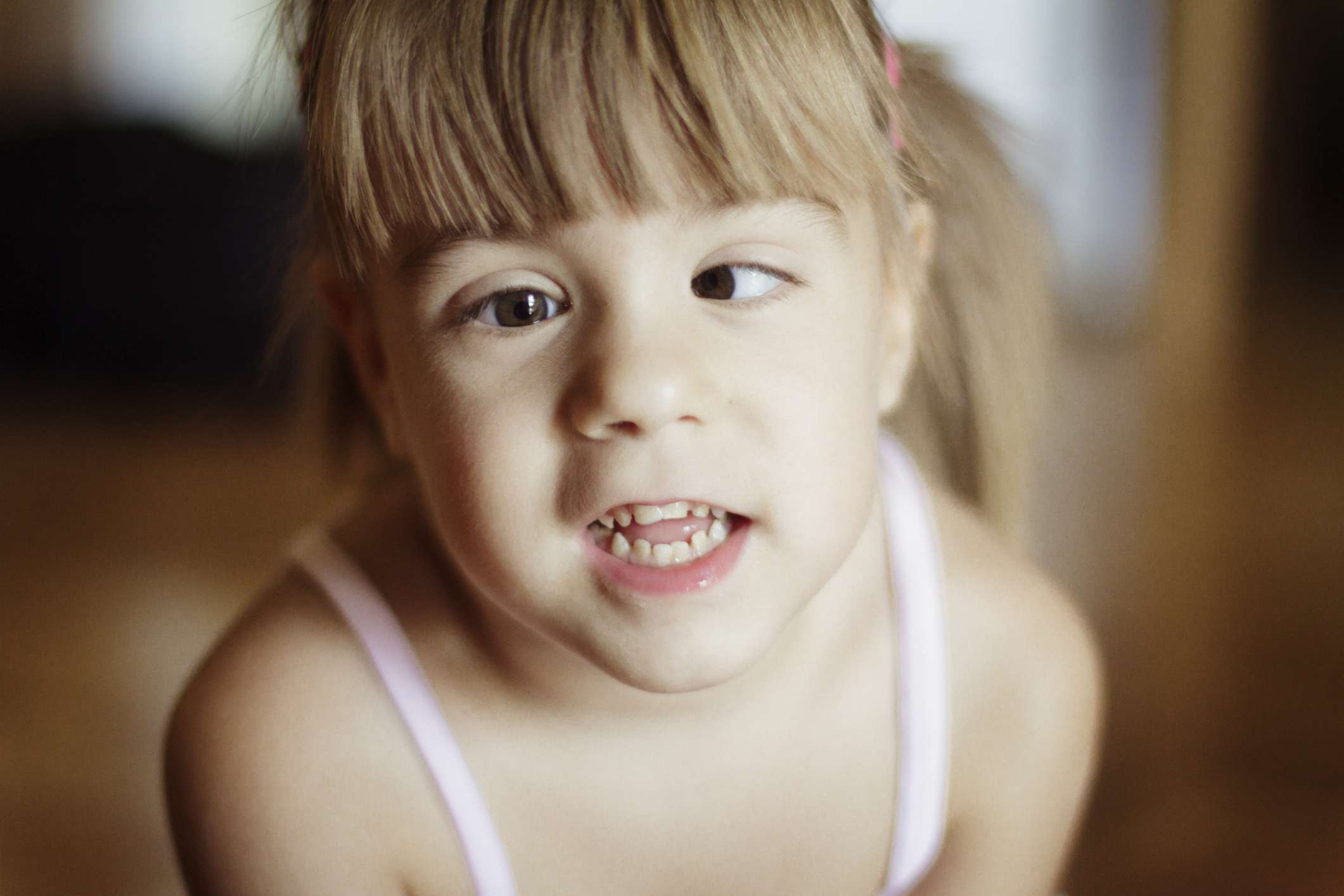 Child with strabismus (squint)