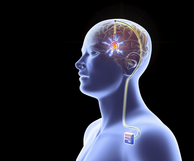 Deep brain stimulation, artwork