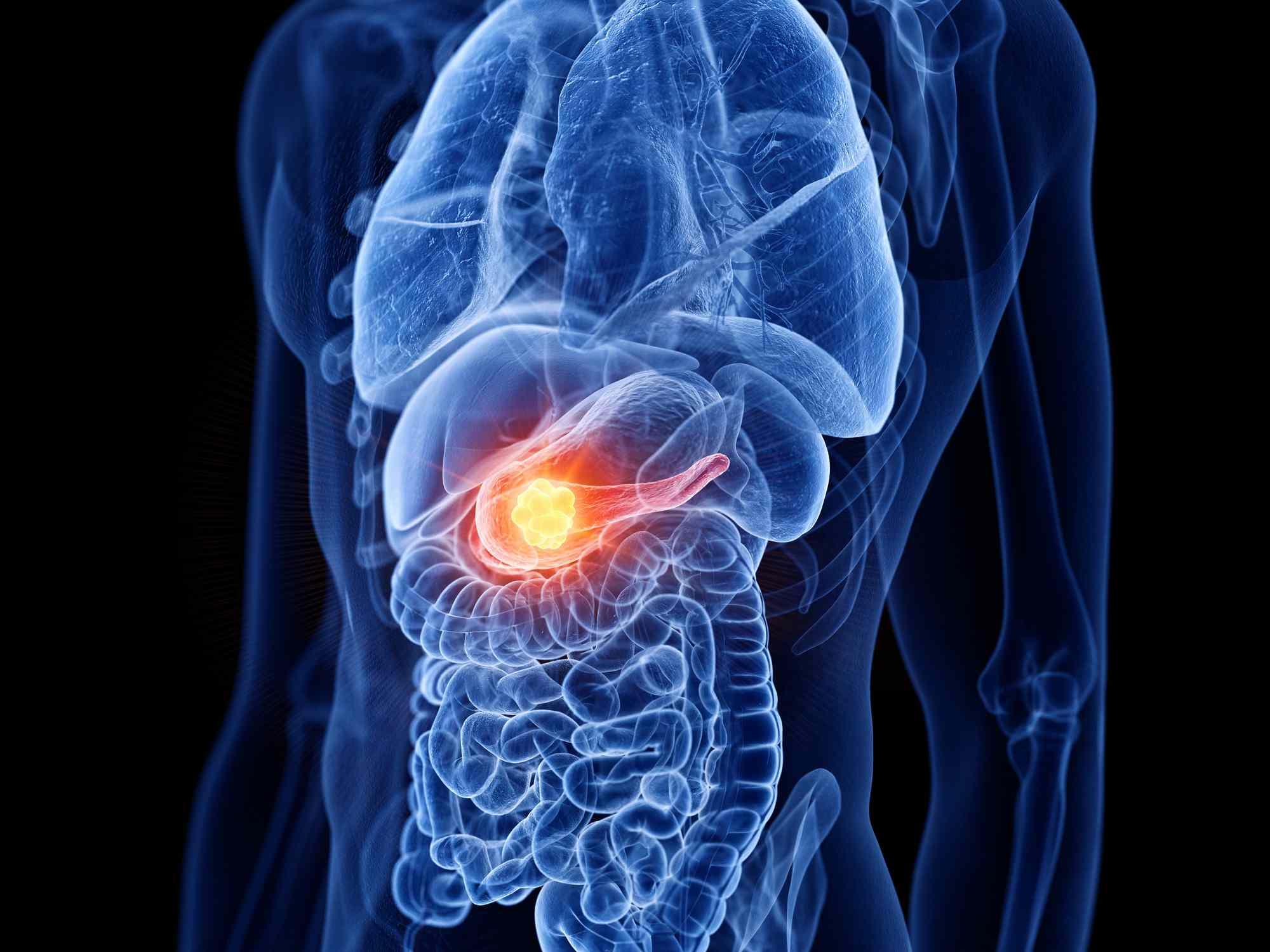 Pancreas cancer, computer illustration.