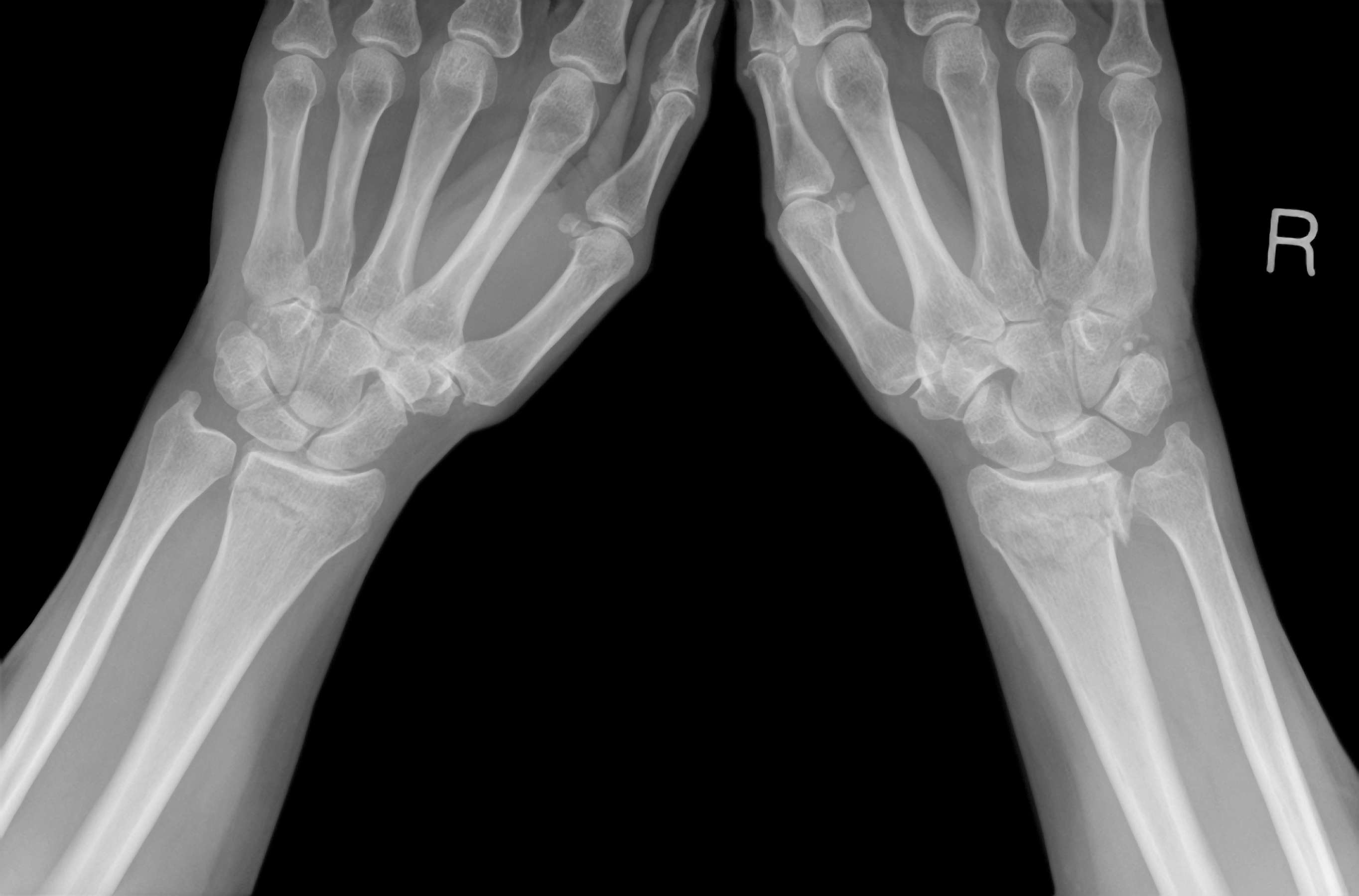 Colles fracture xray