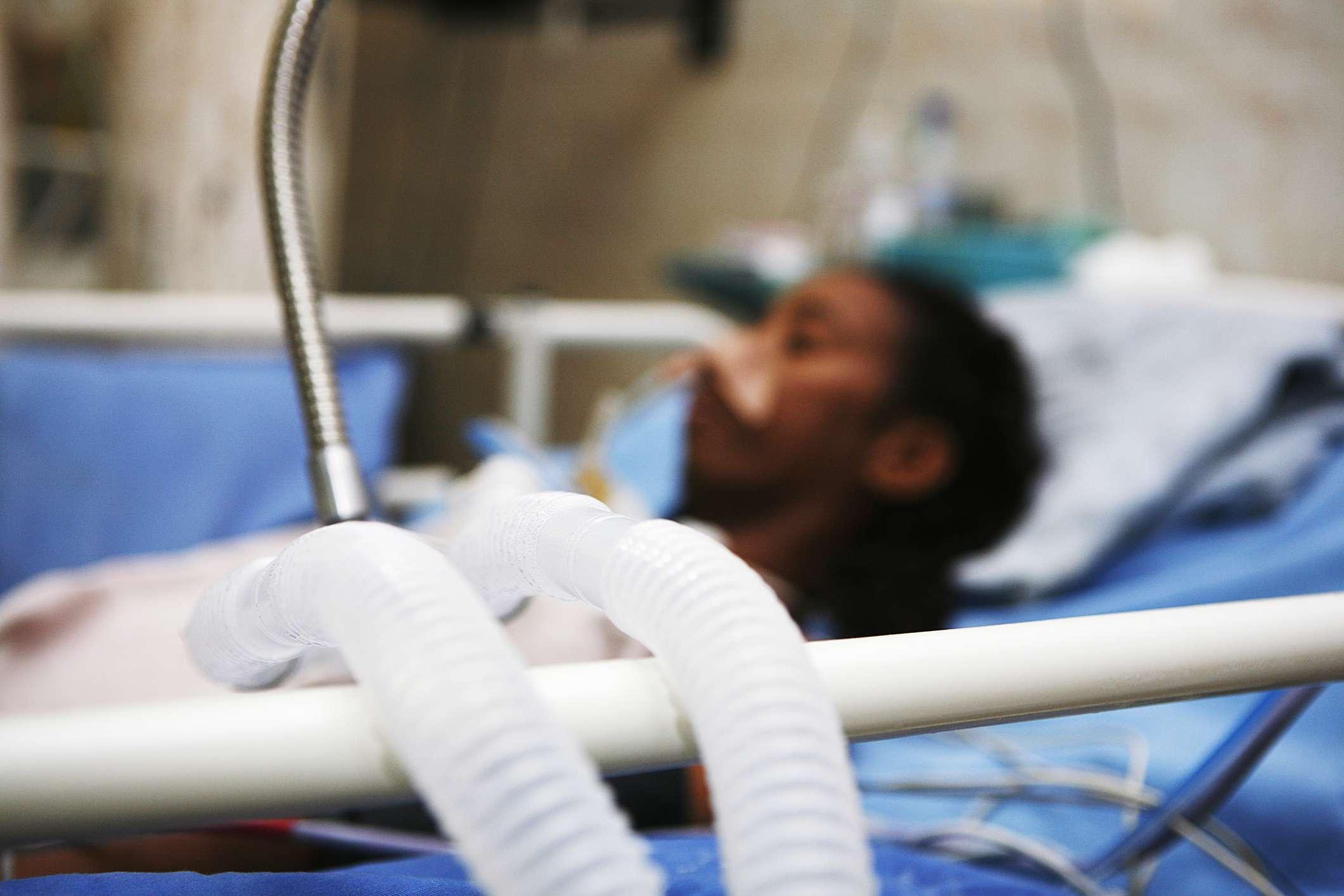 patient on ventilator in hospital bed
