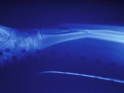 xray of a broken wrist