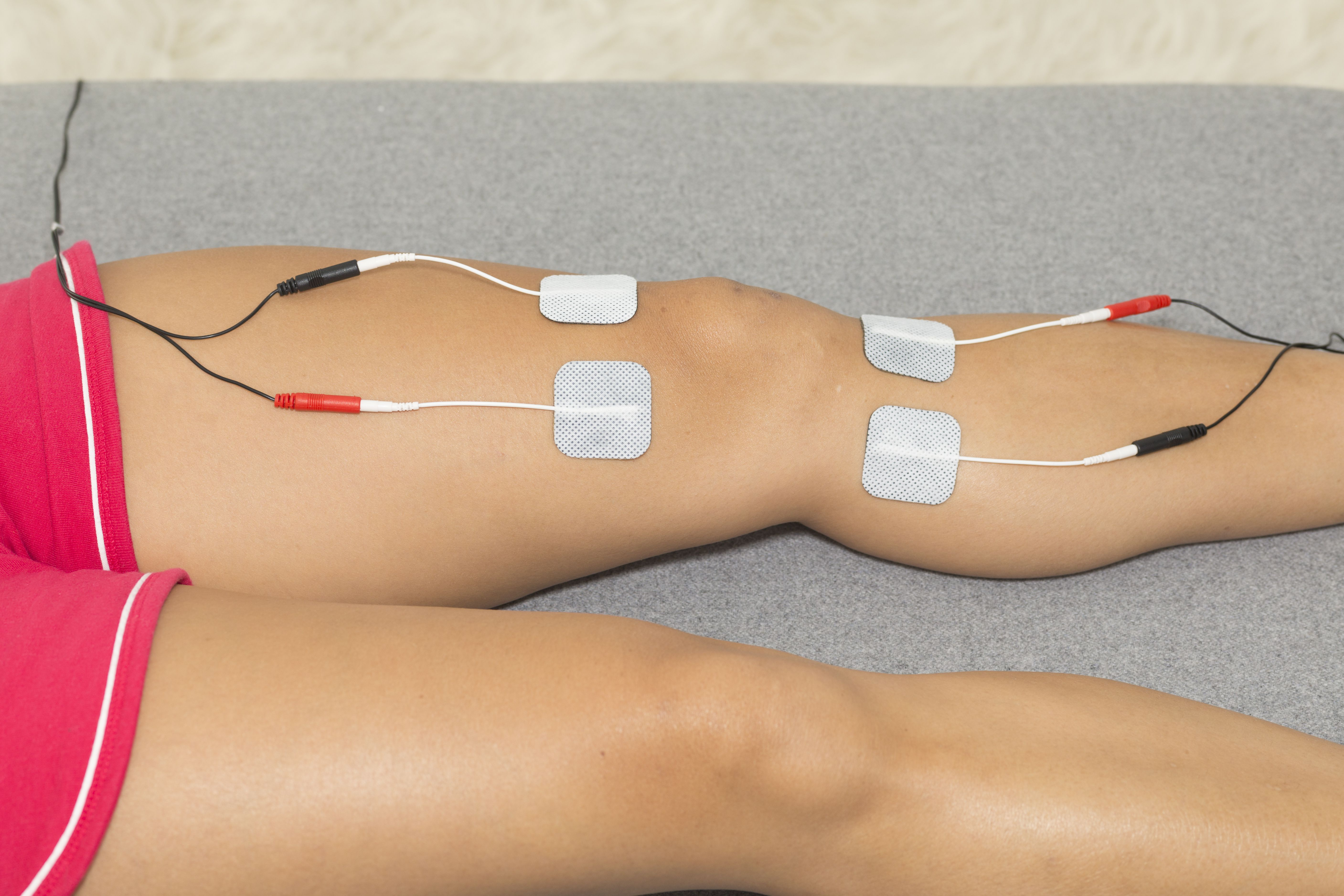 Types of Electrical Stimulation Used in PT