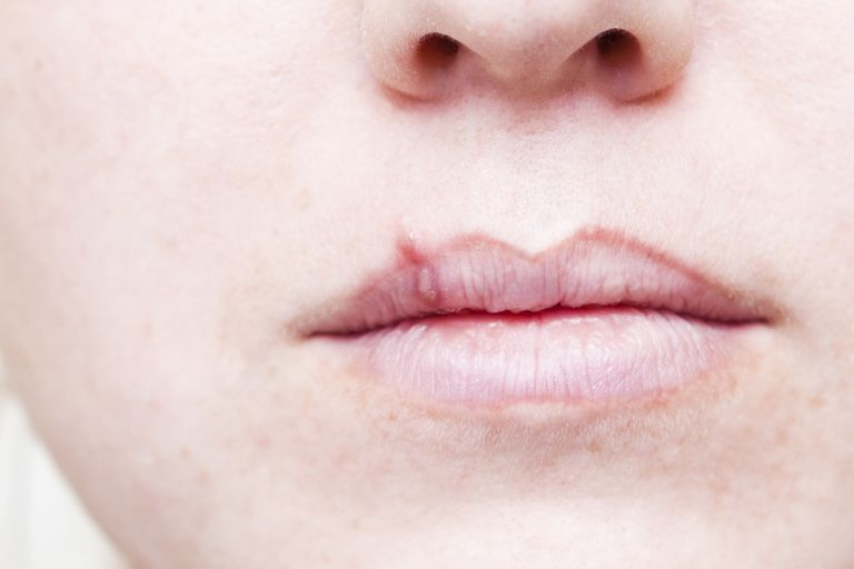 close up of cold sore on person's upper lip